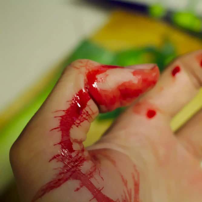Allesschneider-sicherheit-wegen-verletzungen